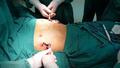 """Liệu pháp đột phá """"cứu cánh"""" cho bệnh nhân bị lõm ngực"""