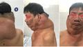 Phẫu thuật khối u khổng lồ cho 'người gấu'