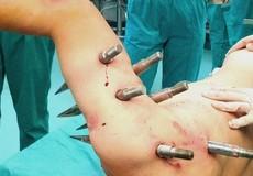 Sống sót thần kỳ sau khi bị 10 chiếc đinh dài 30 cm xuyên thủng người