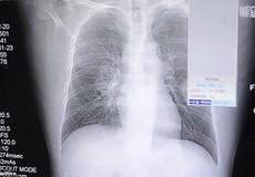 Ngửi tất hôi hàng ngày, người đàn ông nhập viện vì viêm phổi