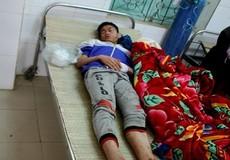 Nam sinh bị thương nặng do điện thoại phát nổ trong lúc đang sạc