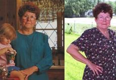 Gặp lại người phụ nữ đầu tiên nâng ngực trên thế giới