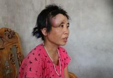 Người phụ nữ khốn khổ với khối u khổng lồ trên mặt