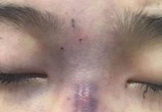 Chồng tiêm chất làm đầy mũi khiến vợ mù mắt