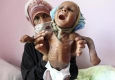 85.000 trẻ dưới 5 tuổi ở Yemen chết vì 'đói'