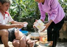 Việt Nam được WHO công nhận loại trừ bệnh giun chỉ bạch huyết