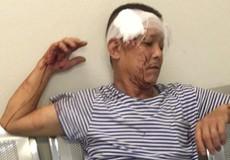 Hà Nội: Ngang nhiên lao vào trụ sở công an phường đánh người?