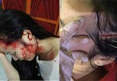 Hà Tĩnh: Vụ thiếu nữ bị hành hung dã man, xử phạt một nữ giáo viên