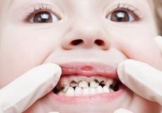4 thói quen của người lớn vô tình gây bệnh răng miệng cho trẻ