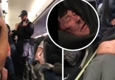 Bác sỹ gốc Việt bị kéo lê, United Airlines 'tốn' cả tỷ USD