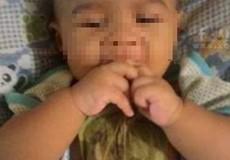 Đắp lá chữa sổ mũi, bé gái 6 tháng tuổi bỏng nặng vùng ngực