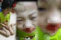 Phẫn nộ: Bé gái mặt dính máu, nghi bị mẹ đánh rồi live stream trên facebook