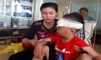 Mẹ tá hỏa phát hiện con trai bị chó nhà cắn nát một phần mặt