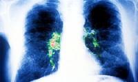 Cách phòng ngừa bệnh viêm phổi do khuẩn Legionella gây nên