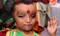 Bé trai Ấn Độ mắc bệnh lạ được tôn sùng thành thần