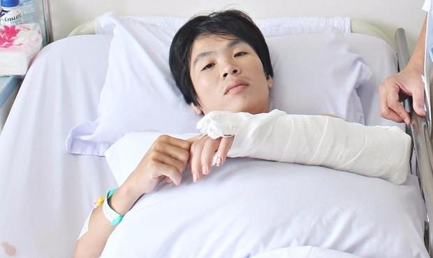 Nối thành công bàn tay gần bị đứt lìa cho một thanh niên gặp nạn tại đám cưới