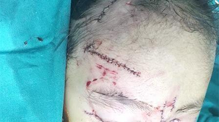 Chó nhà tấn công bé gái 31 tháng tuổi nhập viện