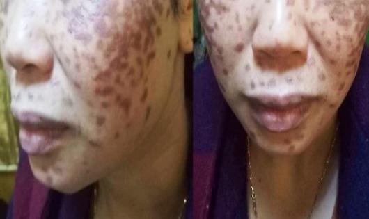 Quý bà bỏng da vì trị nám bằng axit ở Spa