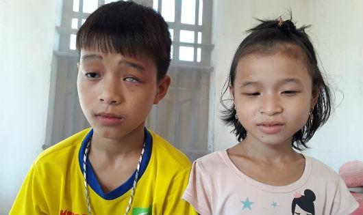 Hai đứa trẻ con nhà nghèo cùng mắc chứng bệnh trầm trọng về mắt