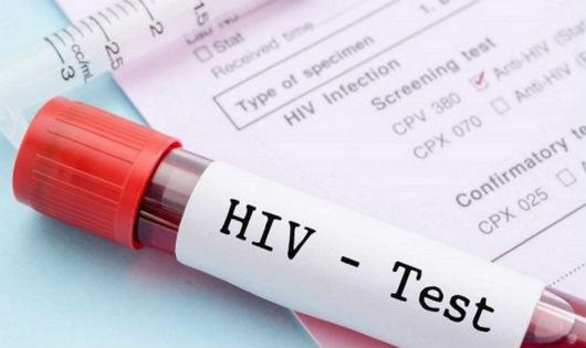 Xét nghiệm HIV sớm - phấn đấu hướng tới mục tiêu 90 - 90 - 90