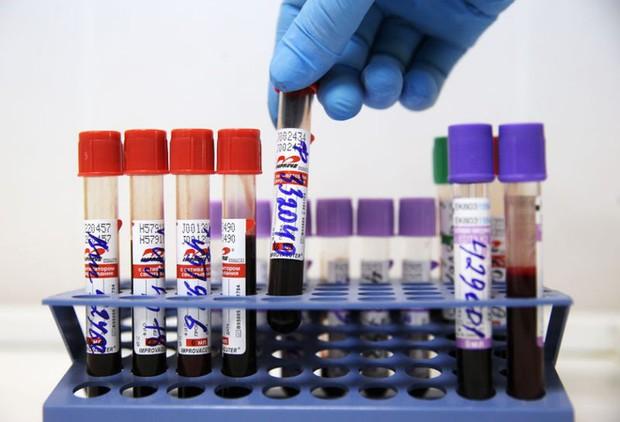Toàn quốc có 1.345 cơ sở cung cấp dịch vụ tư vấn và xét nghiệm HIV