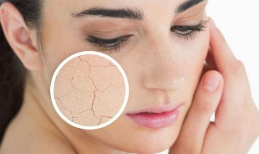 Kết quả hình ảnh cho hình ảnh nứt nẻ da vào mùa đông