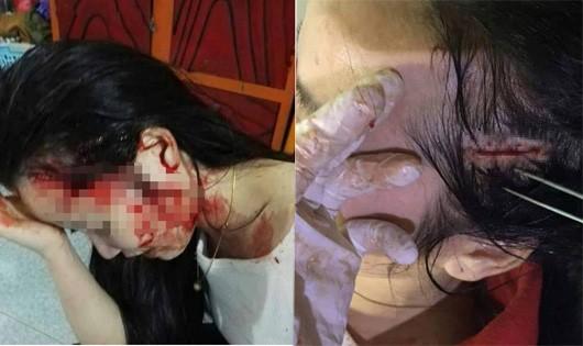 Công an vào cuộc vụ thiếu nữ bị lôi lên taxi hành hung dã man