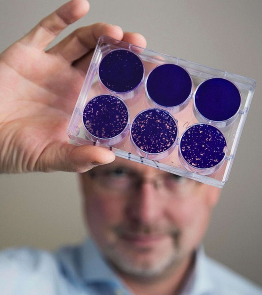 Virus bại liệt được hồi sinh để trị ung thư não - Ảnh 1.