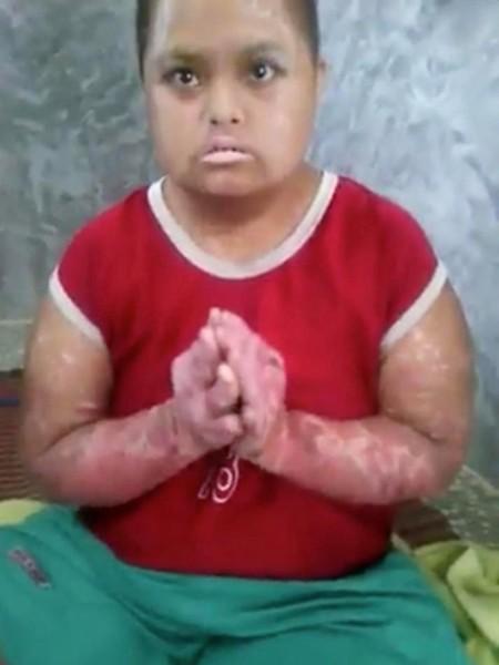 Momo với thân hình sưng phù, da đỏ tấy. Ảnh: ExclusivPix