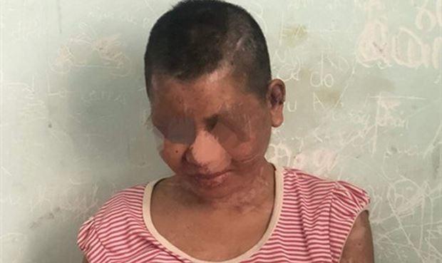 Bộ trưởng Đào Ngọc Dung đề nghị xử lý nghiêm vụ cô gái bị bạo hành ở Gia Lai