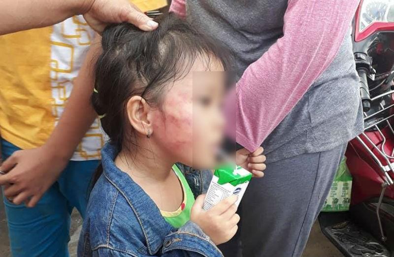 Bé gái 5 tuổi nghi bị bảo mẫu tát sưng mặt ở Sài Gòn