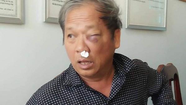 Liên tiếp xảy ra hai vụ nhà báo bị hành hung