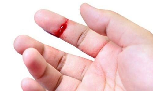 Làm gì khi xử lý vết thương cho người bị bệnh máu khó đông