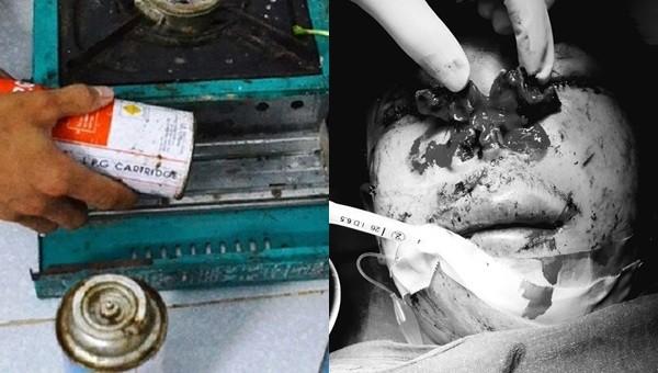 Nổ bình gas mini, người đàn ông cụt ngón tay, nam thanh niên vỡ toác mũi