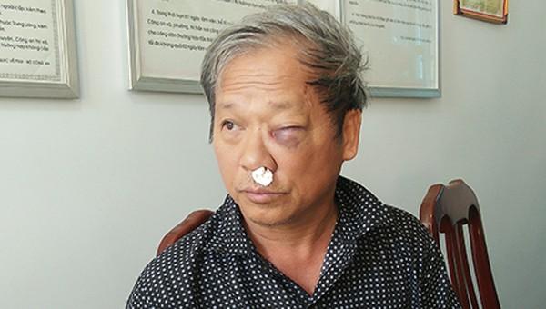 Truy bắt 2 nghi phạm đánh trọng thương nhà báo ở Kon Tum