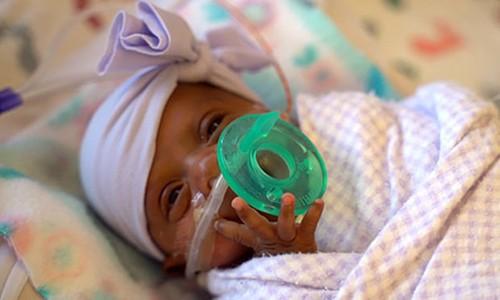 Bé gái chào đời nhỏ nhất thế giới, chỉ... 245 gram