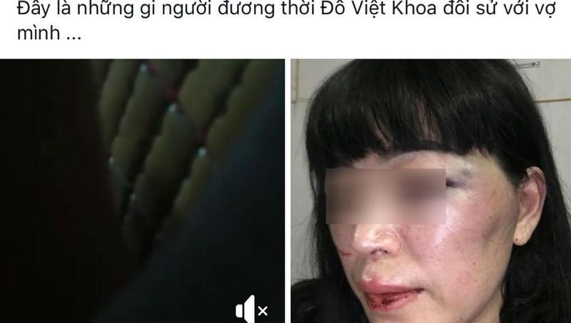 Thực hư thông tin 'Người đương thời' Đỗ Việt Khoa đánh vợ
