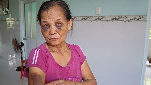 Người con dâu đánh mẹ chồng tím mặt công khai xin lỗi, bị phạt 2 triệu đồng