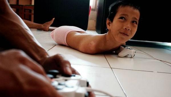 Nụ cười vẫn tỏa sáng trên gương mặt cậu bé không chân, không tay