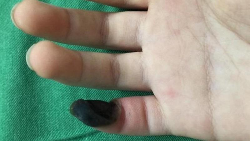 Bé gái 6 tuổi hoại tử ngón tay do mua thuốc trên mạng tự chữa mụn cóc
