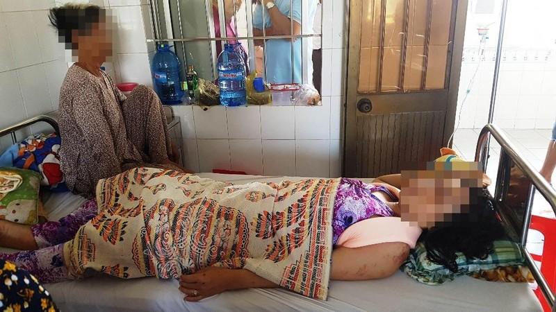 Một phụ nữ bị chồng cũ tông xe phải nhập viện?